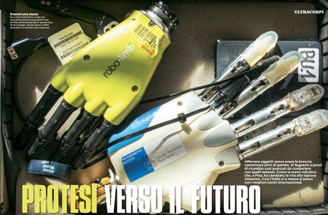 Protesi verso il futuro 1