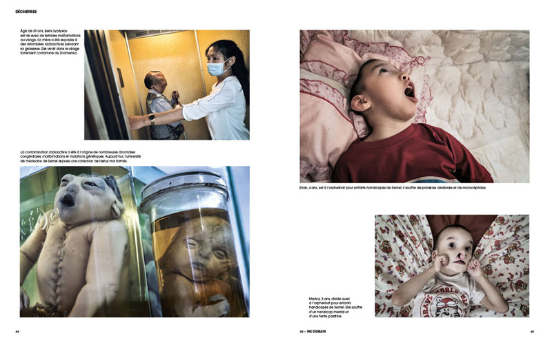 Kazakhstan |Semipalatinsk. La mort en héritage 4